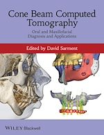 Télécharger cet ebook : Cone Beam Computed Tomography