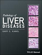 Téléchargez le livre :  Pathology of Liver Diseases