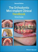 Téléchargez le livre :  The Orthodontic Mini-implant Clinical Handbook