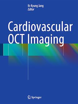 Cardiovascular OCT Imaging