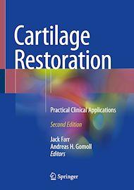 Download the eBook: Cartilage Restoration