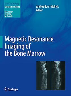 Magnetic Resonance Imaging of the Bone Marrow