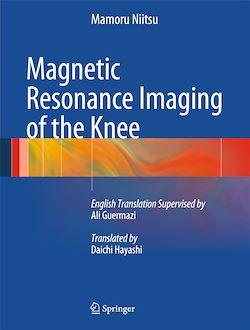 Magnetic Resonance Imaging of the Knee