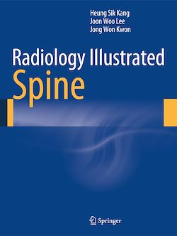 Radiology Illustrated: Spine
