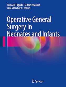 Operative General Surgery in Neonates and Infants